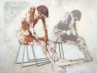 6-vitiligo
