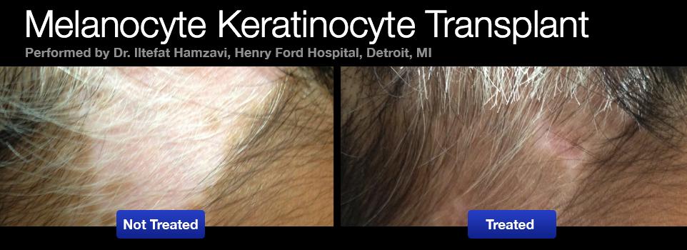 vitiligo-melanocyte-keratinocyte-transplant