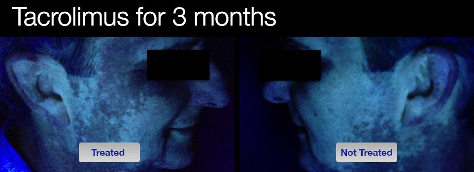 vitiligo-tacrolimus